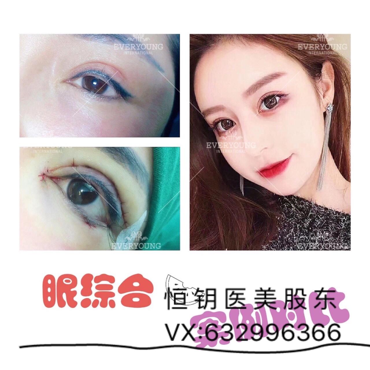 杭州哪里做双眼皮手术好